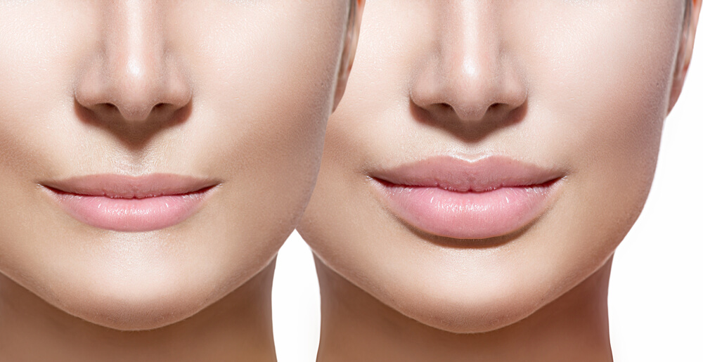 Lip and cheek enhancement